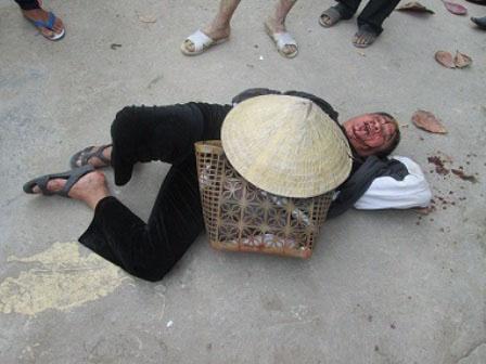 Bà Bình mặt đầy máu sau khi bị đánh