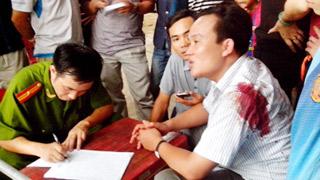 Anh Ngọc bị thương ở bả vai nhận ra viên CSGT nổ súng đeo bảng tên là Nguyễn Ngọc Hoàng - Ảnh: Ái Châu