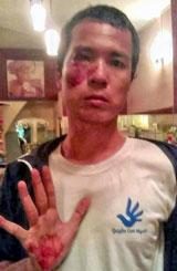 Blogger Hoàng Dũng bị đánh rách mí mắt, chảy máu mặt. Photos mangluoiblogger