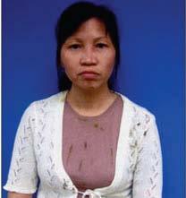 Chị Khương, một dân oan, một nhà tranh đấu đã nhiều lần bị đánh đập