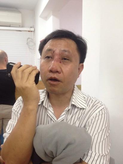 Hình ảnh ông Truyển bị đánh ngay gần DSQ Úc