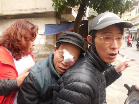Nguyễn Lân Thắng, Lê Thị Phương Anh phải tới đưa Trương Dũng đi viện dù đồn và trạm công an ngay gần đó.