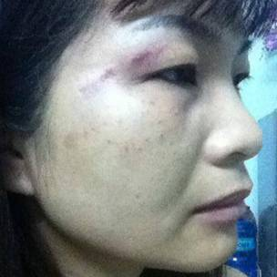 Nhà hoạt động Trương Hoàng Anh cũng bị 'đánh'