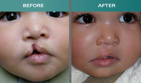 Cleft-Lip-Surgery-Before-And-After