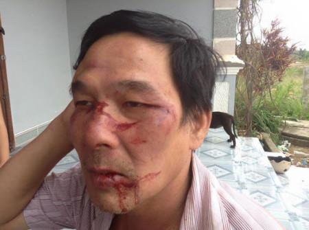 Ông Lê Đình Lượng bị đánh