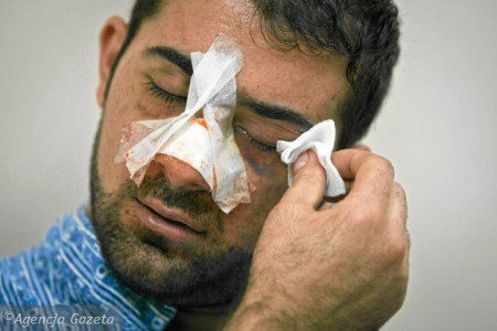 Thanh niên Syria bị đánh ở tp Poznań. Ảnh ŁUKASZ CYNALEWSKI